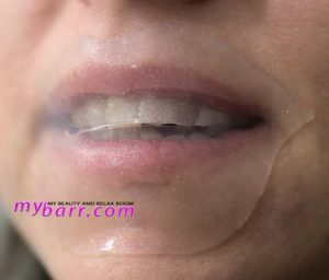 patchology lip gels maschera flashpatch per le labbra sephora mybarr