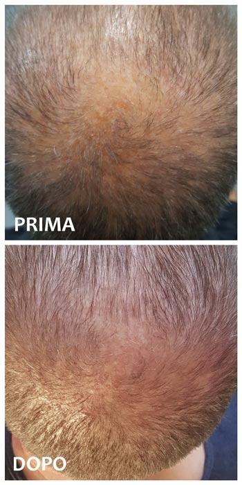 Labo Suisse Crescina Transdermic Ri-Crescita Link Beta 4 uomo prima e dopo mybarr